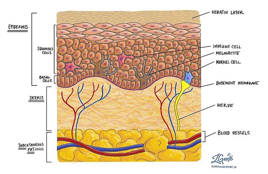 Melanoma Skin Mypathologyreport Ca