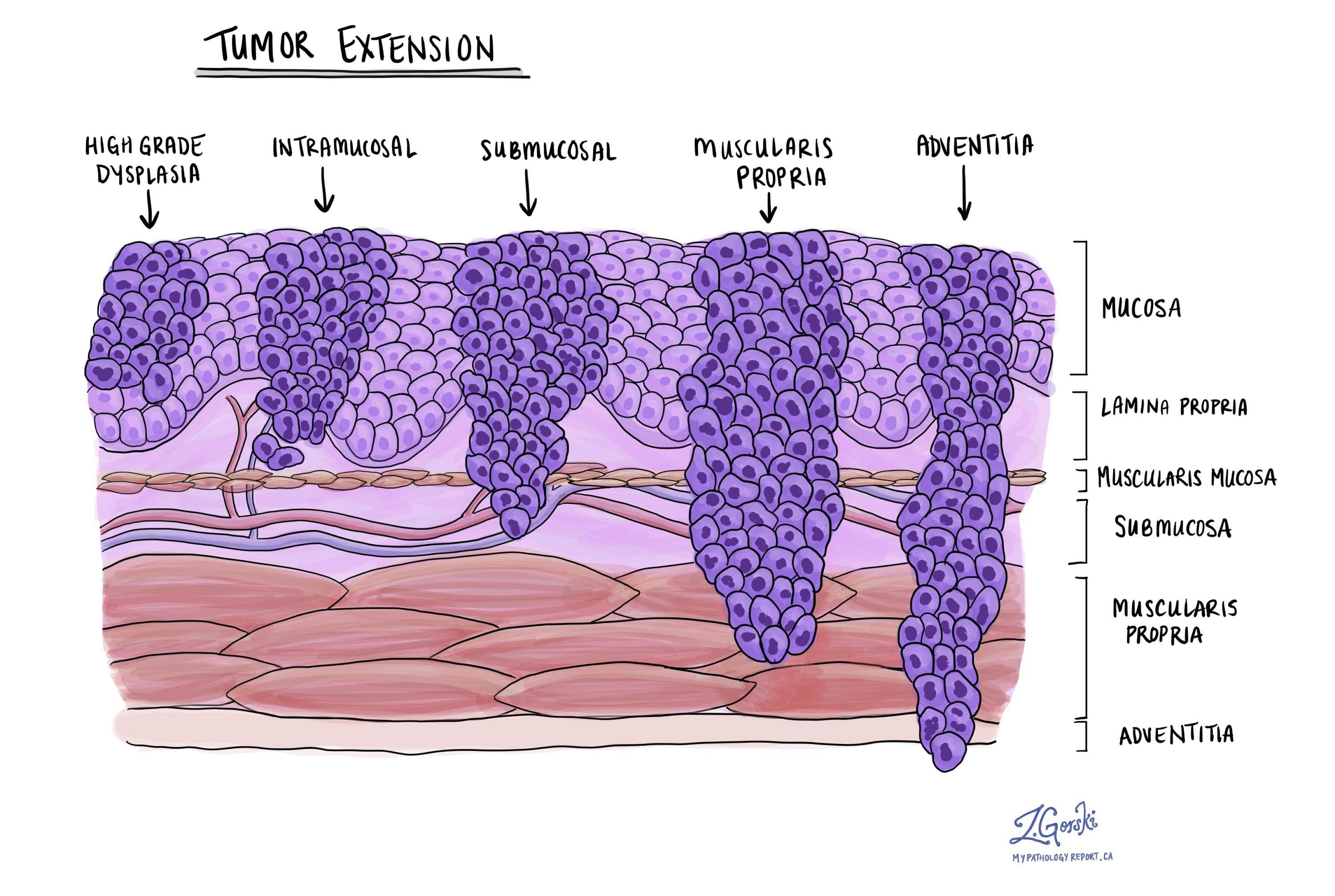 Esophagus dysplasia and squamous cell carcinoma