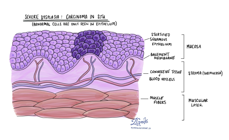 Oral cavity dysplasia carcinoma in situ