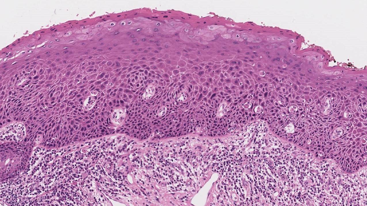 larynx squamous carcinoma in situ