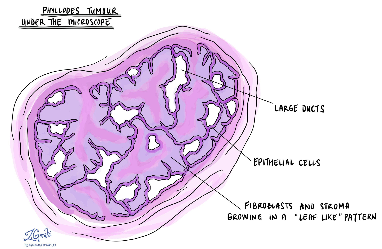 phyllodes tumour