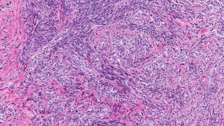 synovial sarcoma
