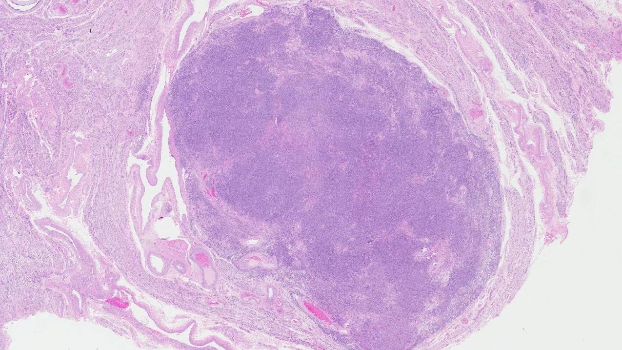 uterus leiomyoma