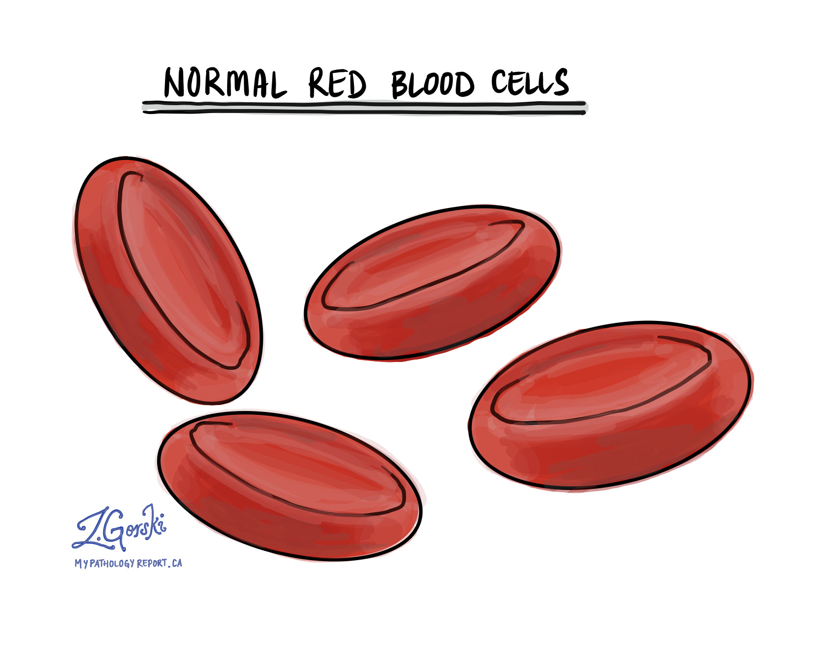 Normal red blood cells