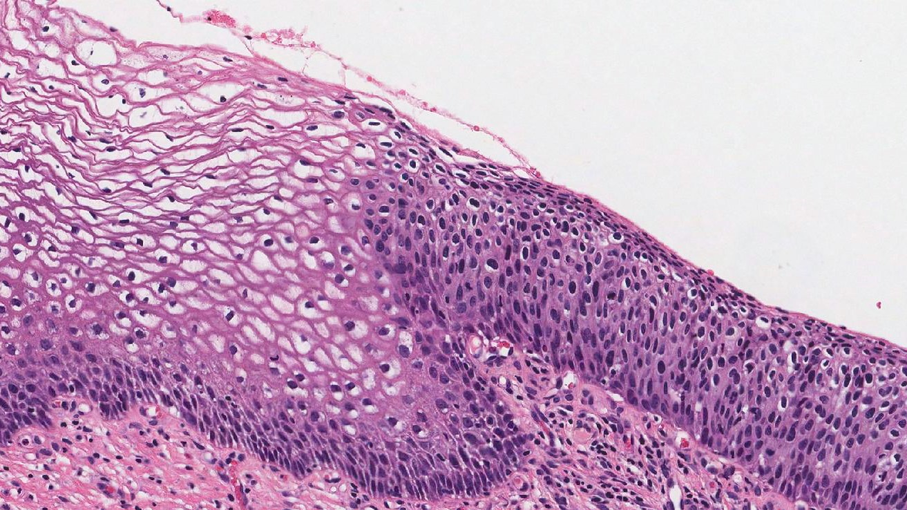 high grade squamous intraepithelial lesion cervix
