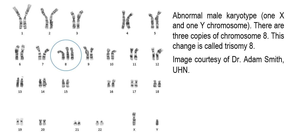 abnormal male karyotype