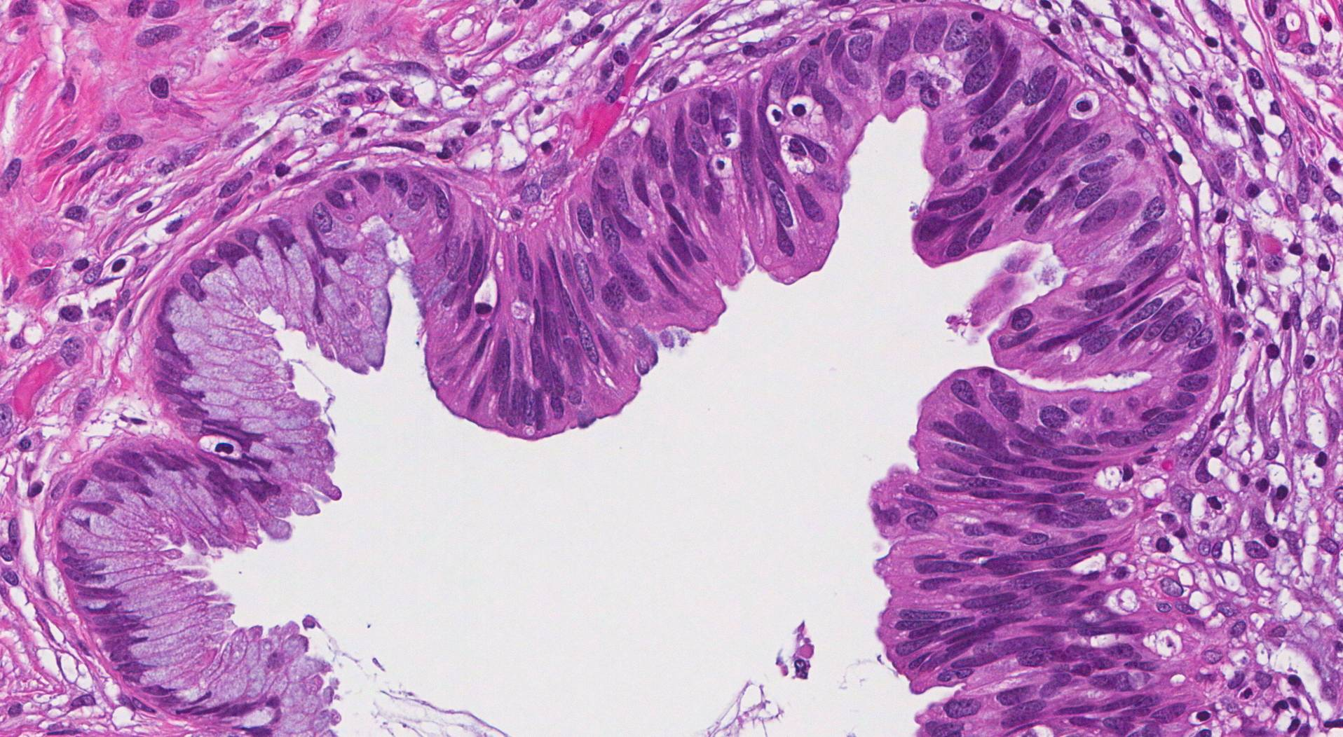 adenocarcinoma in situ cervix