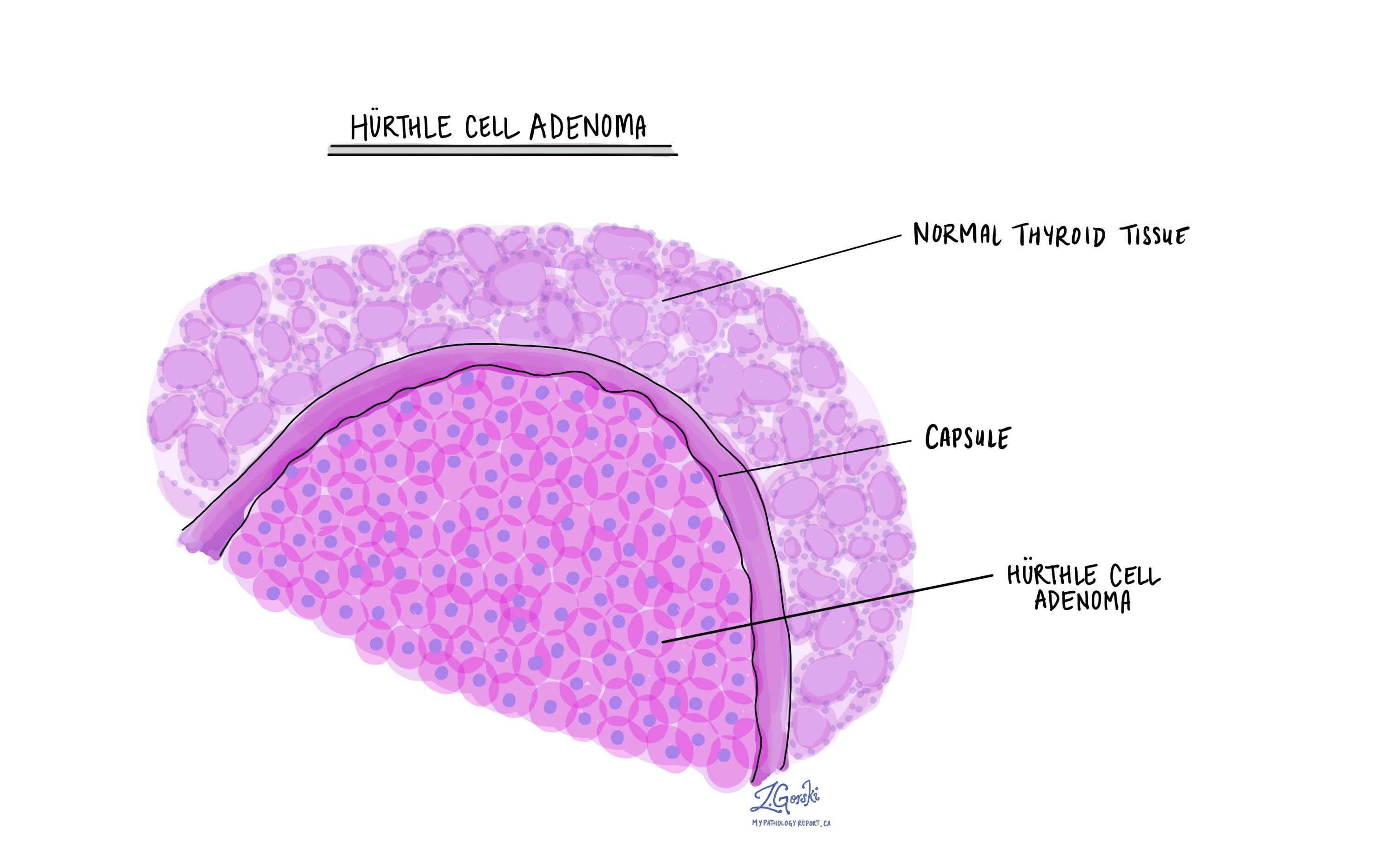 Hurthle cell adenoma
