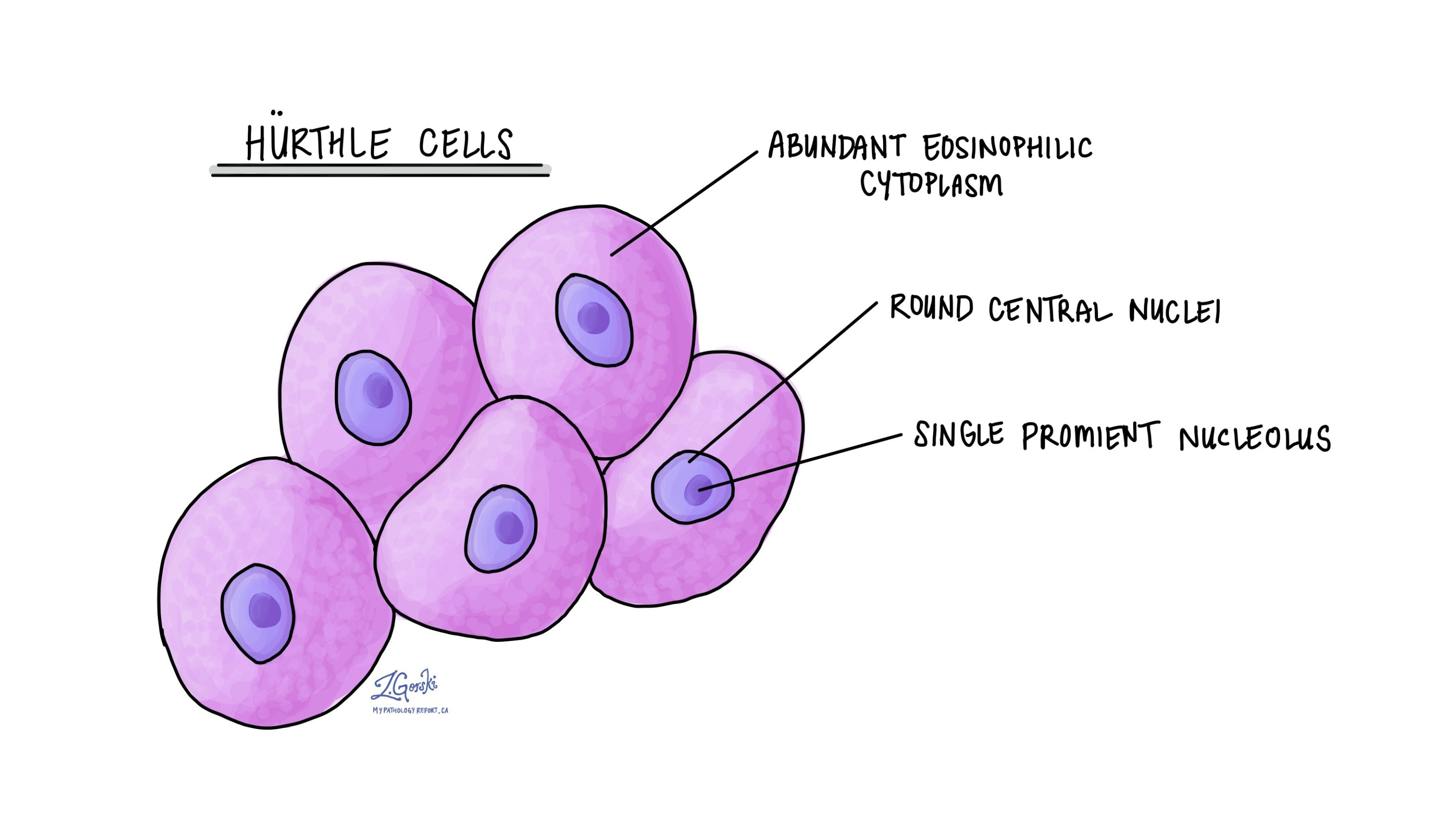 Hurthle cells