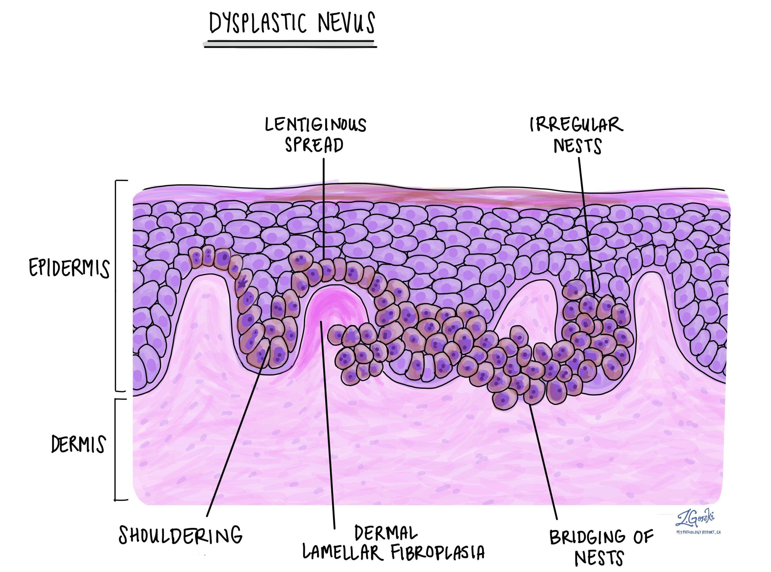 dysplastic nevus
