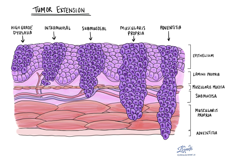 tumour extension esophagus
