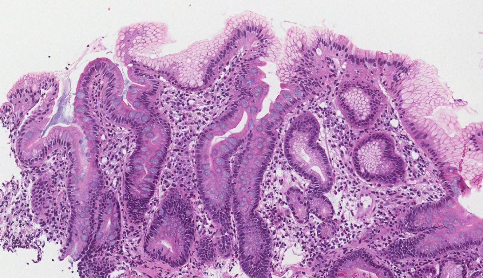 intestinal metaplasia