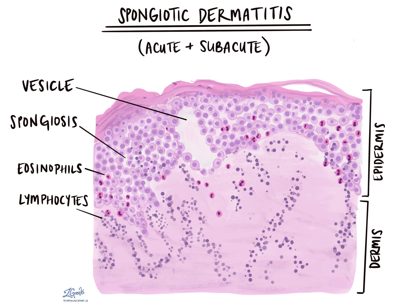 Spongiotic dermatitis acute and subacute changes