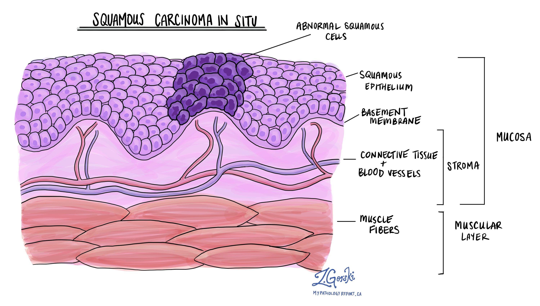 squamous carcinoma in situ oral cavity