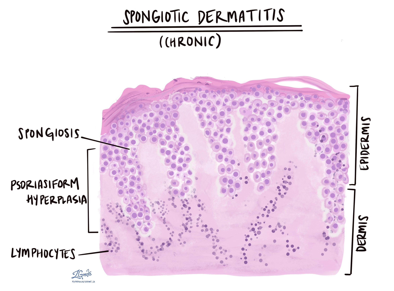 Chronic spongiotic dermatitis