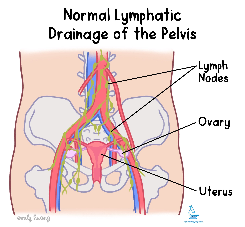Normal lymphatics of pelvis