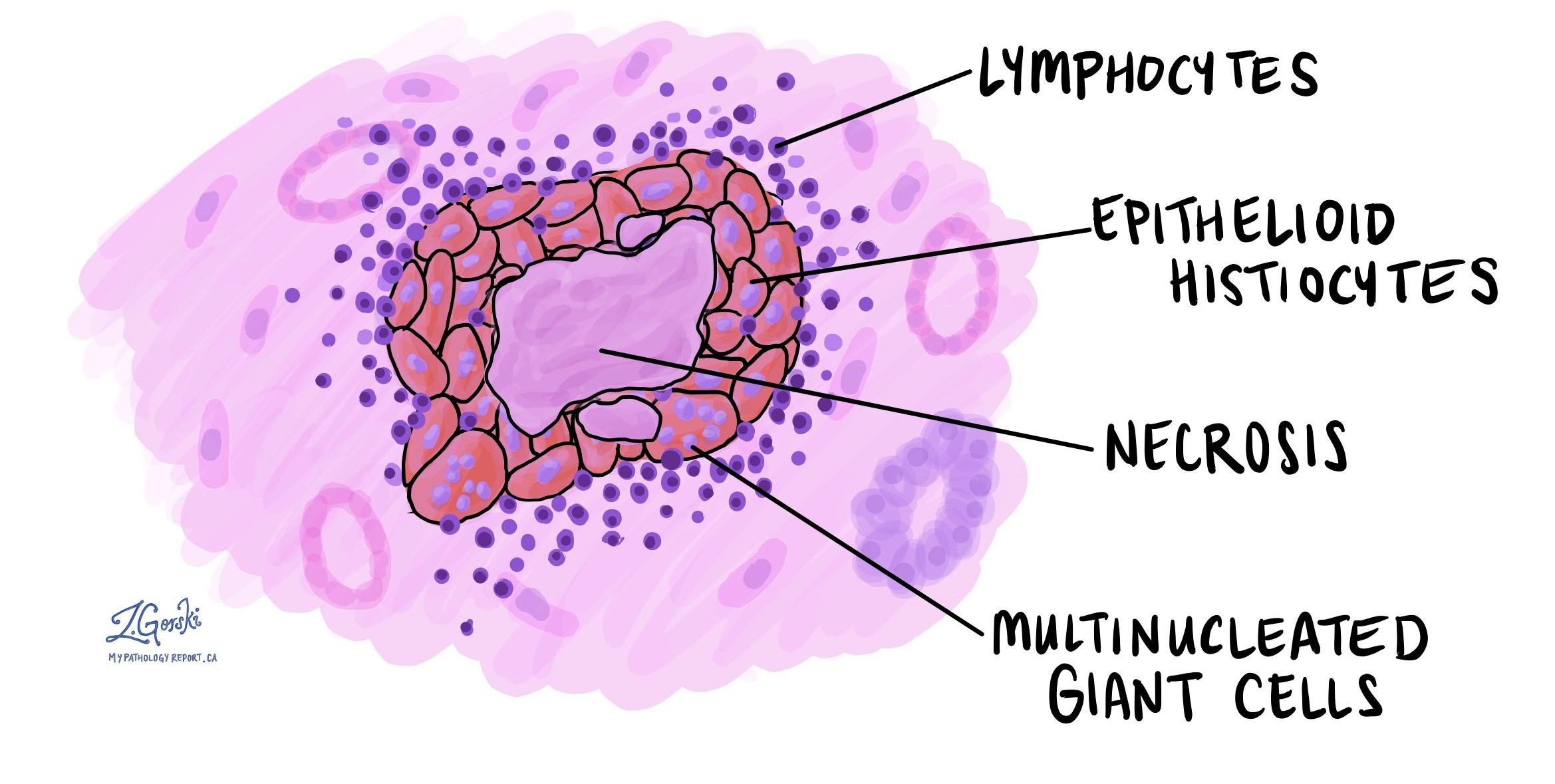 Necrotizing granulomatous inflammation