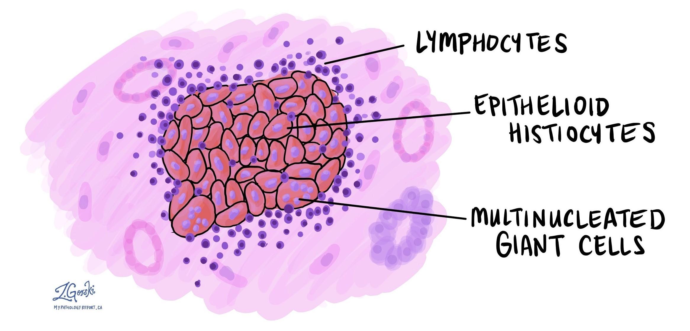 Non-necrotizing granulomatous inflammation