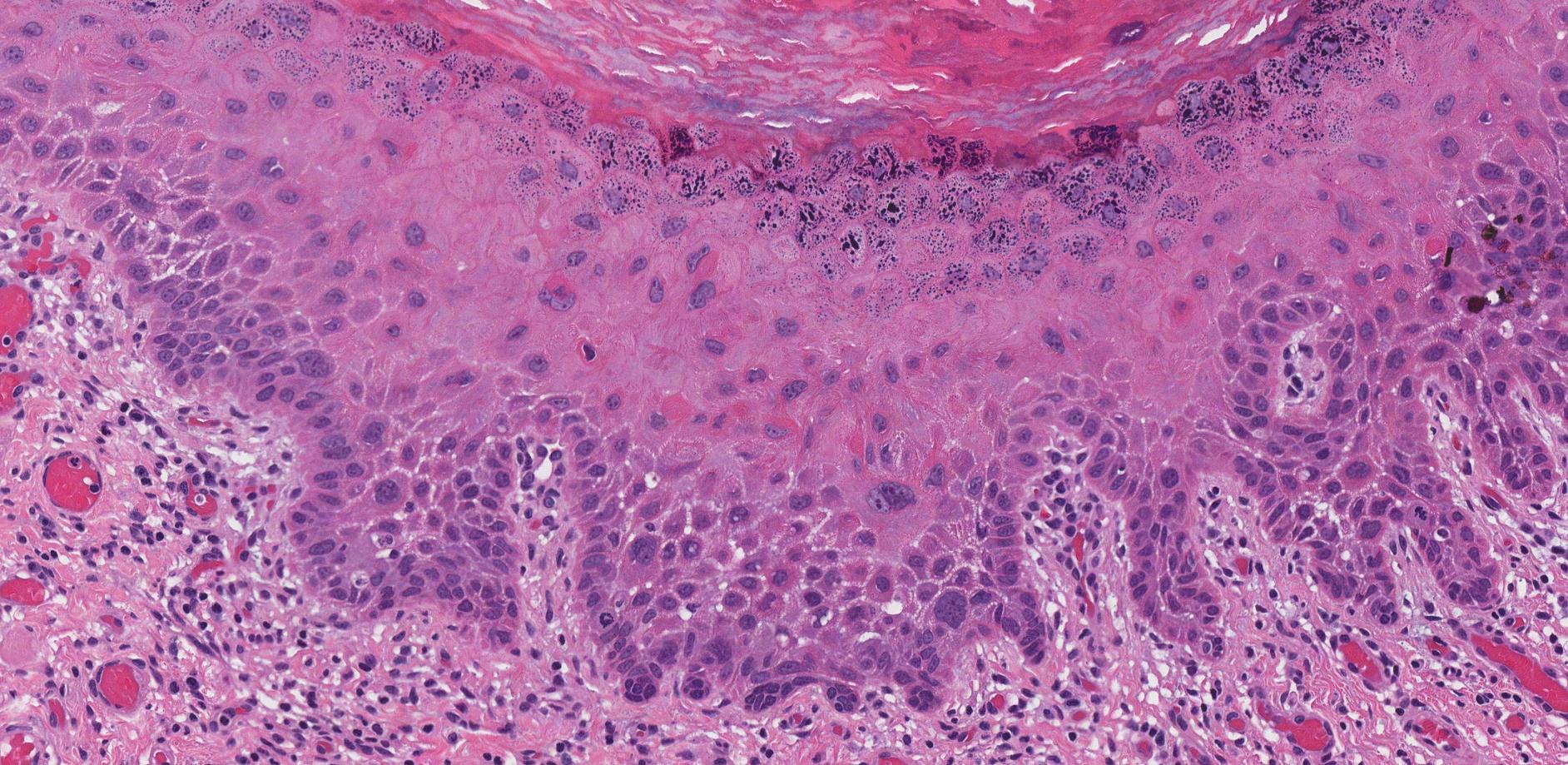 keratinizing squamous dysplasia