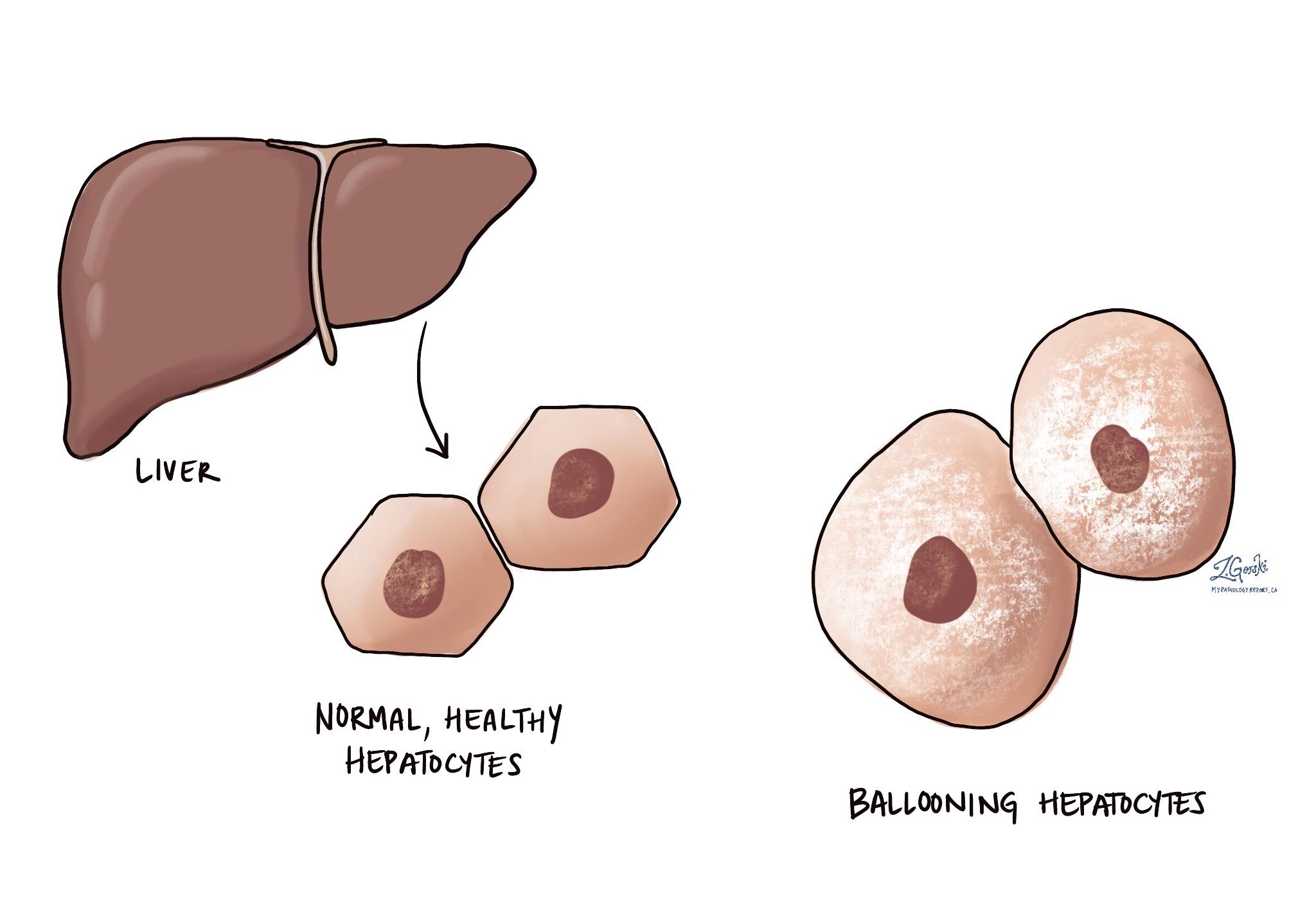 ballooning hepatocyte
