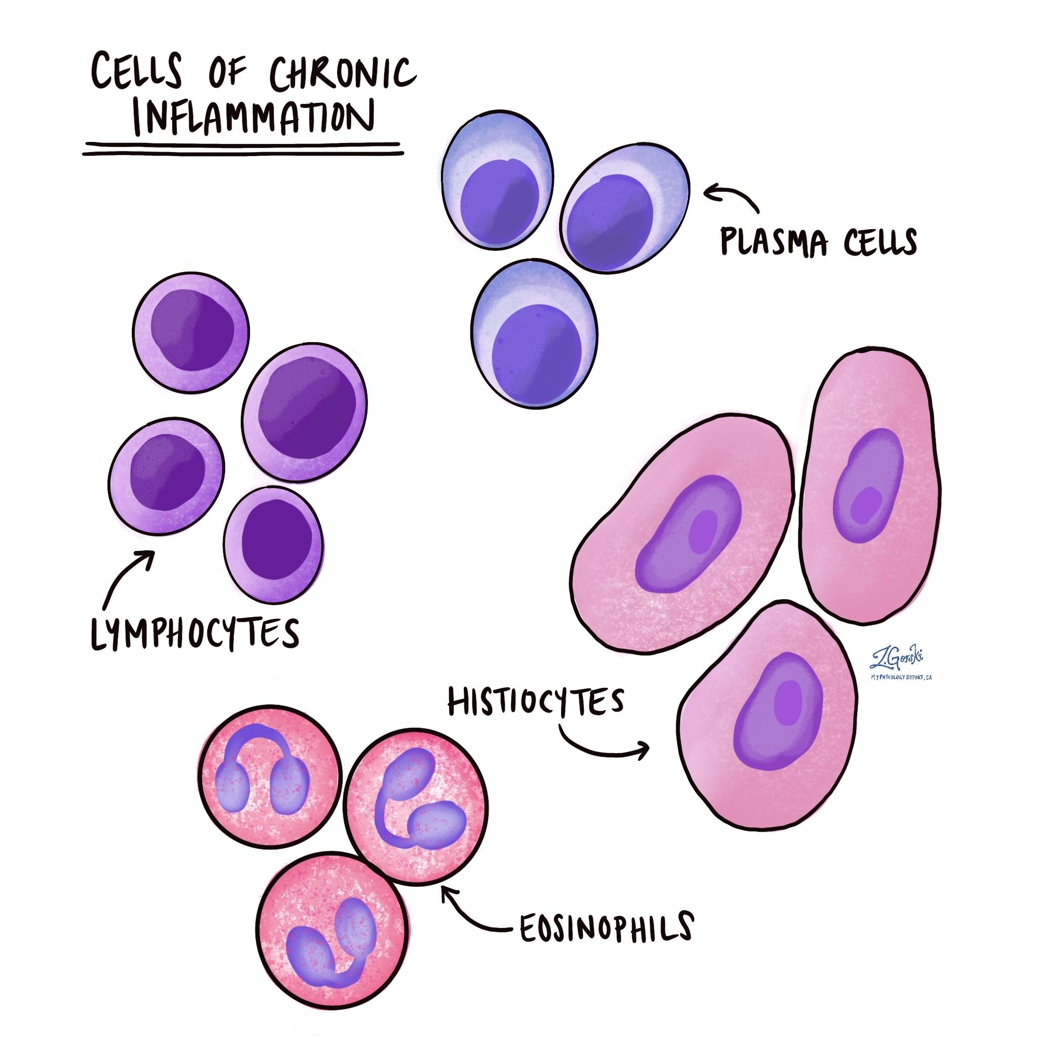 chronic inflammatory cells