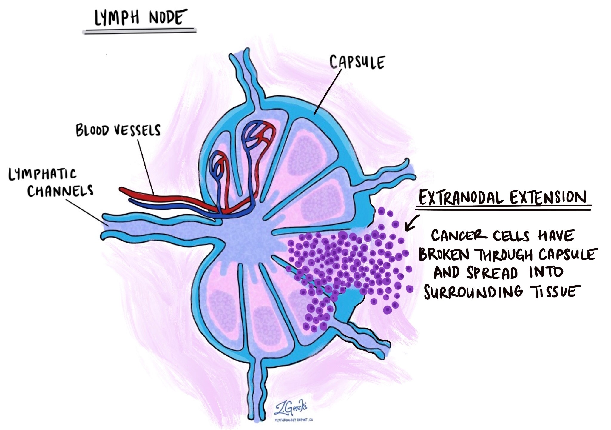 extranodal extension