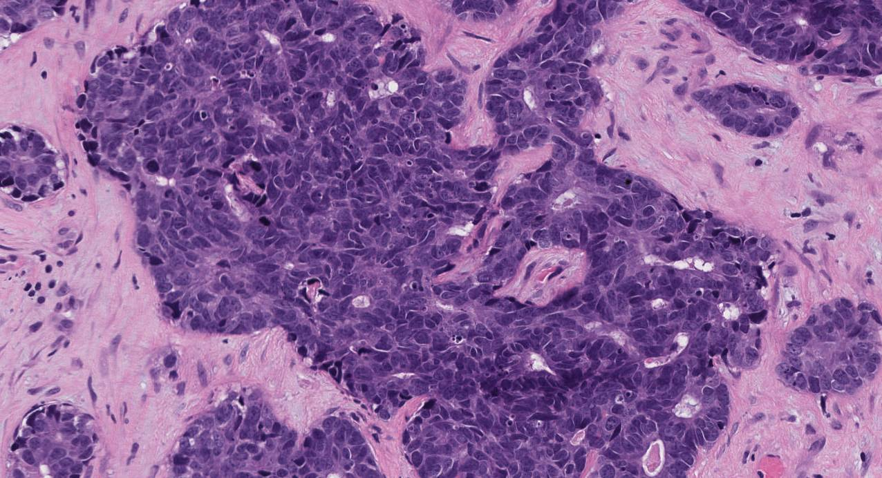 high grade non-intestinal type adenocarcinoma