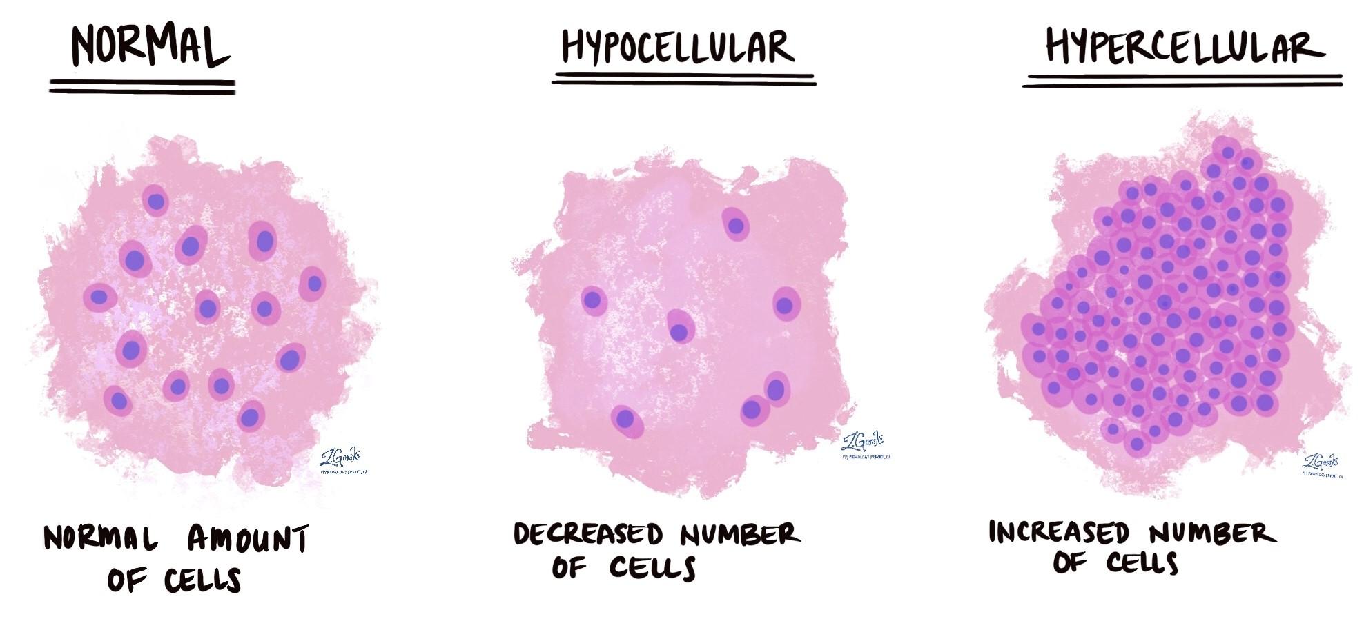 hypocellular and hypercellular