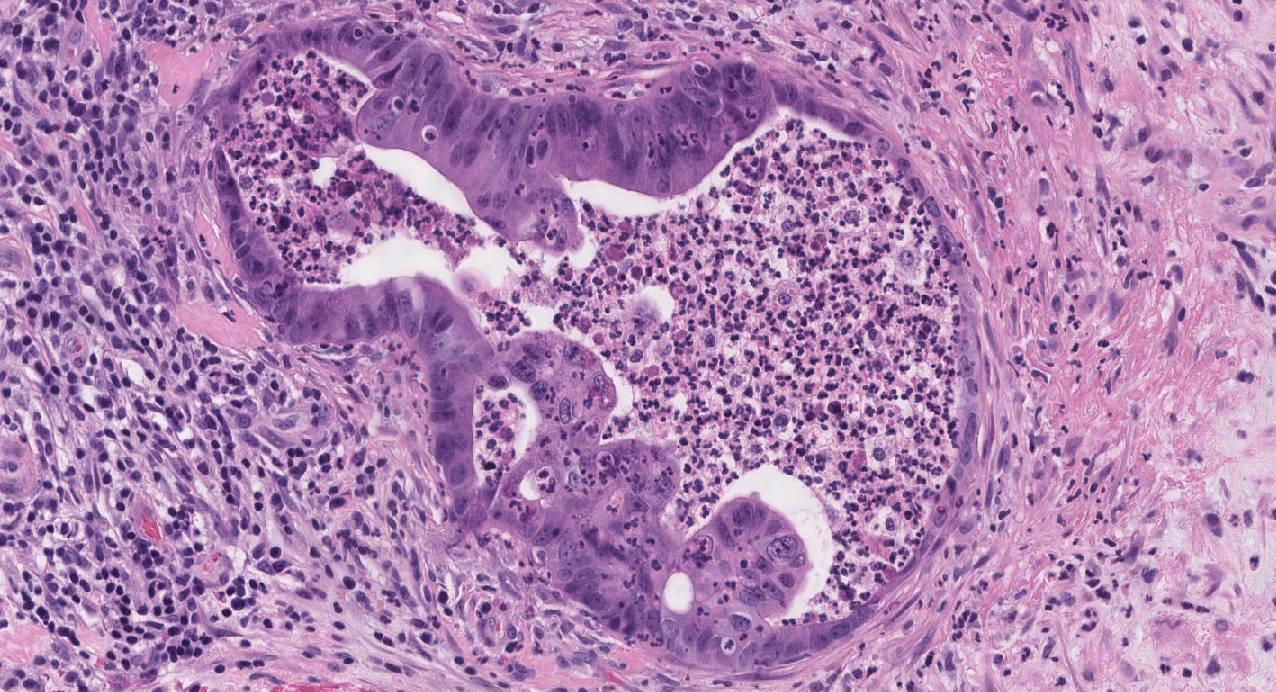 intestinal-type adenocarcinoma
