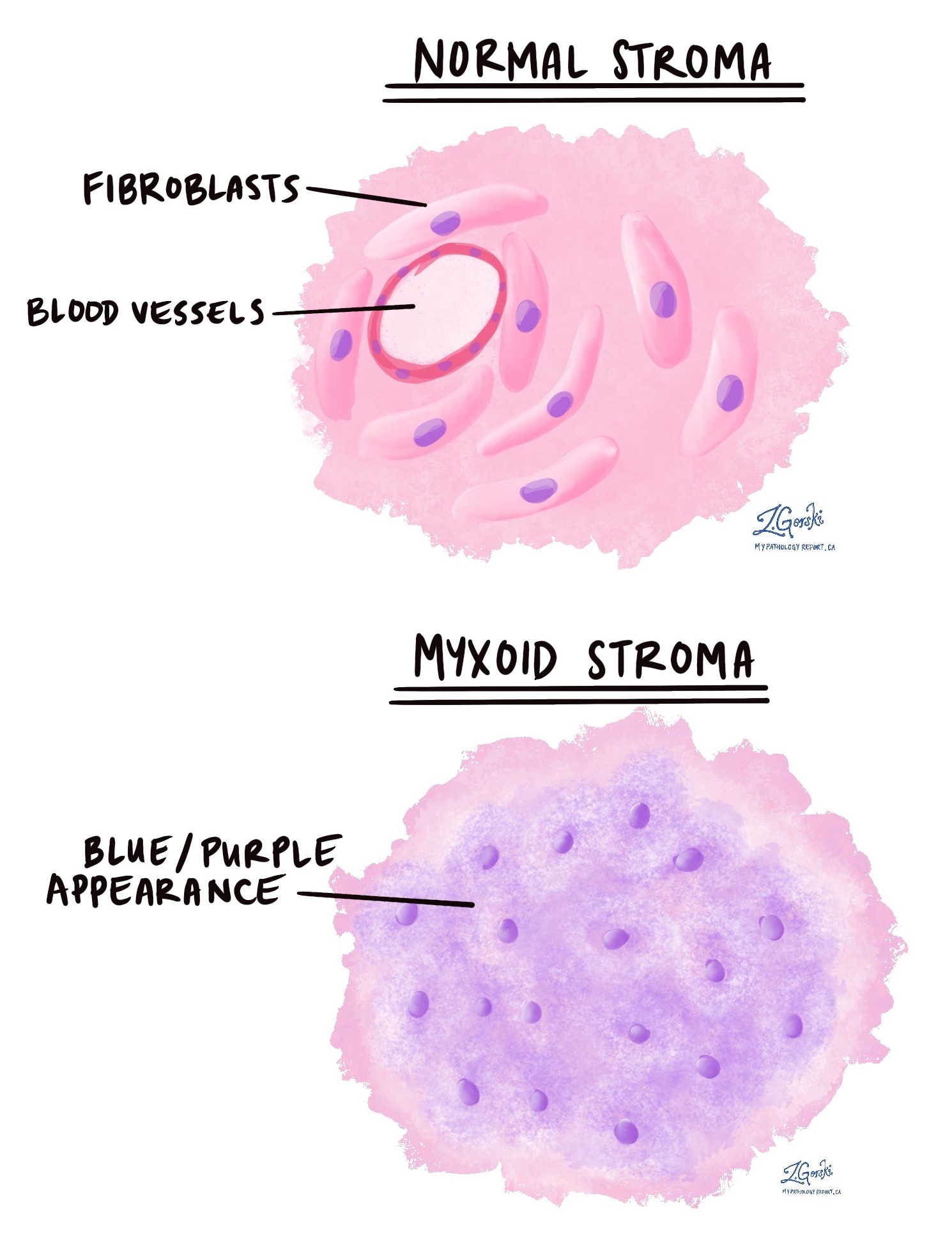 myxoid and normal stroma