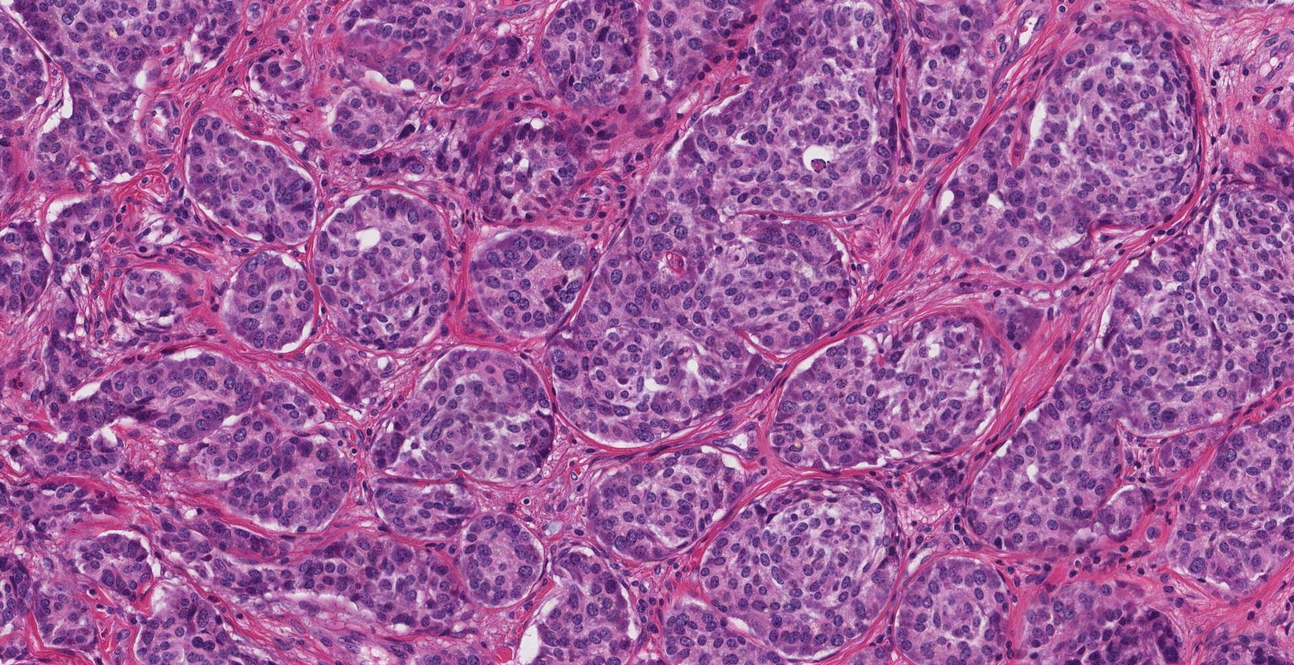 well differentiated neuroendocrine tumour appendix